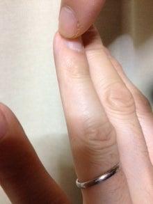 はりとお灸の豐春堂のブログ-関衝④