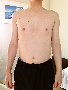自然形体療法徒然記~どうしようもない痛みを解消したい方へ~ スポーツ障害、事故後遺症、難治性の症状は当院へ