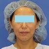 「e-clip(顔+首)」、施術後1ヶ月目の変化です。の画像