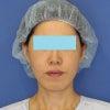 「e-clip(顔+首)」、施術後3ヶ月目の変化です。の画像