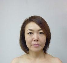 関西エステサロン体験レポート!-ビフォー