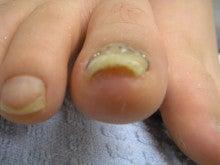 $市川Rio皮膚科巻き爪ワイヤー矯正のブログ
