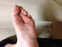 はりとお灸の豐春堂のブログ-湧泉④