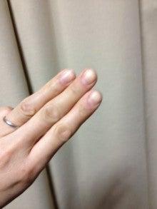 はりとお灸の豐春堂のブログ-内関④