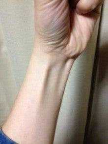 はりとお灸の豐春堂のブログ-内関③