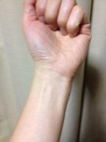 はりとお灸の豐春堂のブログ-内関②