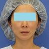 「e-clip(顔+首)」、施術後2ヶ月目の変化をご紹介します。の画像