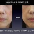 bFGFの鼻唇溝(法…