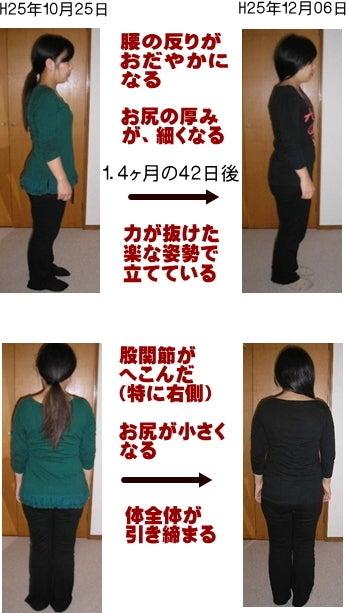 西東京市ひばりヶ丘駅の整体の下半身太り、むくみ改善でお尻が薄く立ち仕事も疲れにくい
