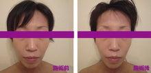 小顔整顔施術前後のお写真