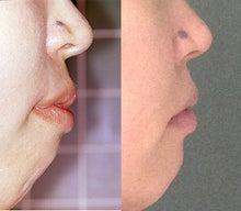 矯正歯科=歯列矯正前後の口もとの変化