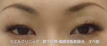 眉下切開 隔膜前脂肪除去 眼窩脂肪除去