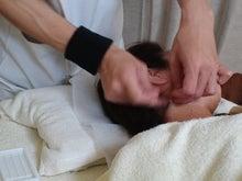 顔美容鍼2