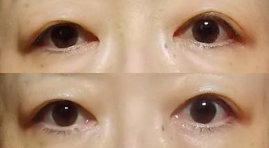 目のたるみ 目のシワ アロマジックハーブテラピー