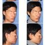 鼻中隔延長術と隆鼻術…