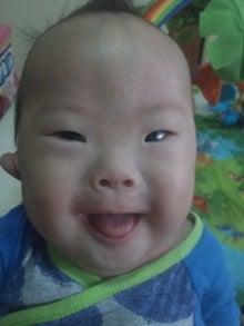 ダウン症の赤ちゃんは、可愛い。