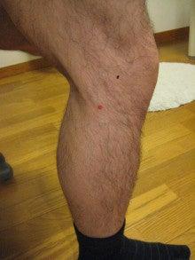 腸脛靭帯と大腿二頭筋の付着部