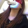 歯のホワイトニング♡の画像