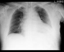 レントゲン 胸部