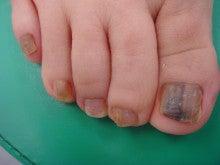 画像 子供 水虫 子供の水虫を治す方法、市販薬は塗り薬?足以外うつる場所は?