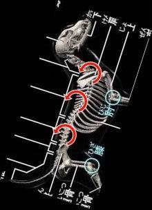 心性 収縮 求 心臓の構造、心肥大、心不全 −