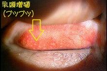 目薬 結膜炎 巨大 乳頭
