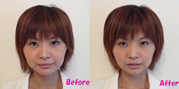 小顔美筋整顔の施術前後