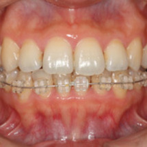 矯正歯科のすすめ方