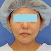 「e-clip(顔+首)」、施術後1ヶ月目の変化をご紹介します。の画像