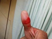 指を切った!!