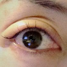目 が 腫れる