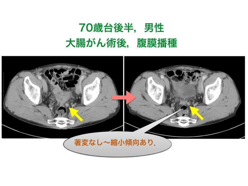 播種 腹膜