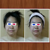 骨盤矯正&美顔コースの画像