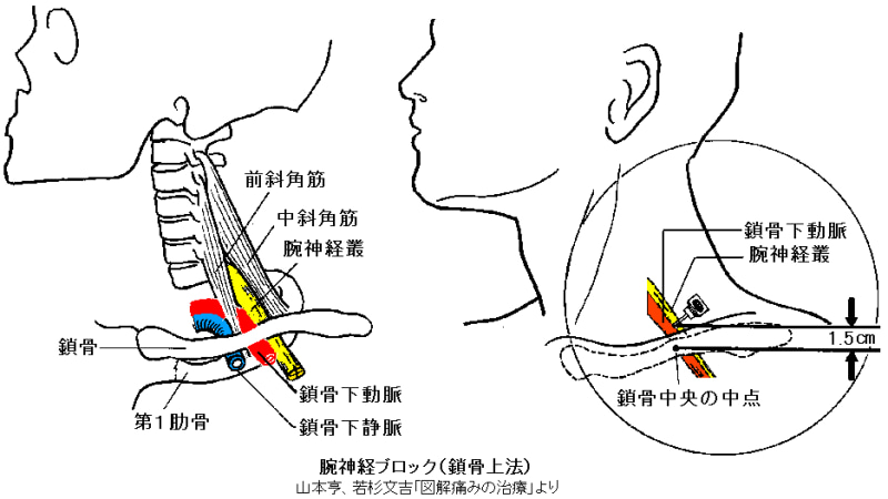 斜角筋を的確にマッサージするから、肩の奥にあるコリが取れるのです   錦糸町:肩こり首こり肩甲骨の奥深くの痛みがスッキリ解消!