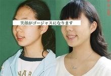 矯正歯科=歯列矯正治療で笑顔がゴージャスに!