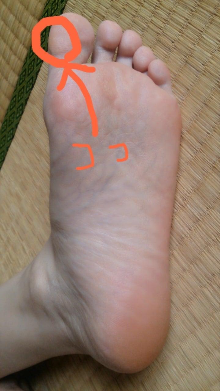 足 の 親指 皮 が むける 指の皮がむける原因とは?7つの原因と3つの病気の可能性について