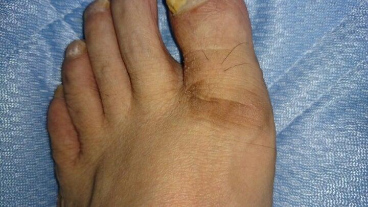 皮膚の硬化