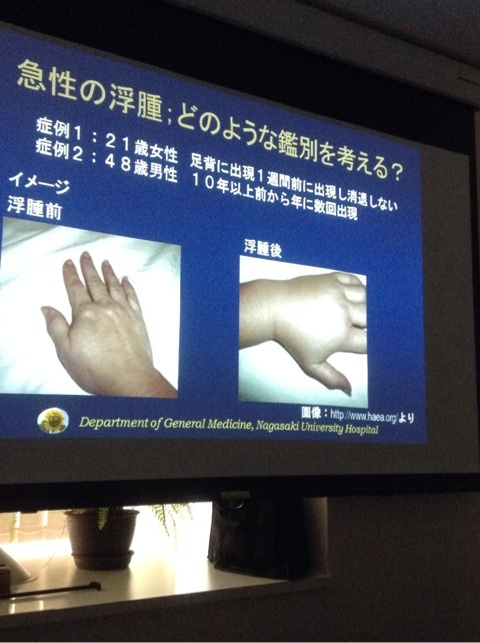 血管性浮腫   長崎大学総合診療 のブログ