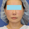 40代女性、「e-clip(顔+首)」、施術後1ヶ月目の変化をご紹介します。の画像