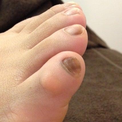 の 変色 足 爪