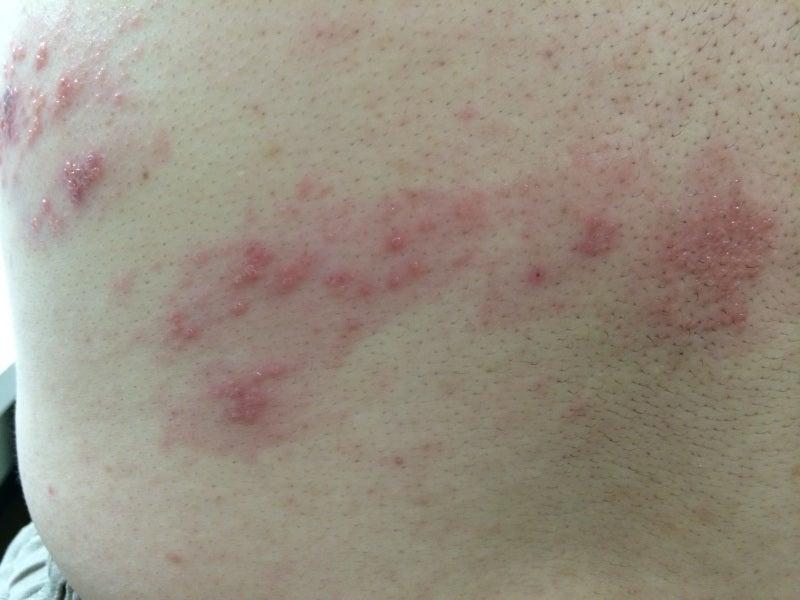 帯状 疱疹 初期 診断