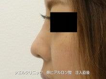 隆鼻術 ヒアルロン酸