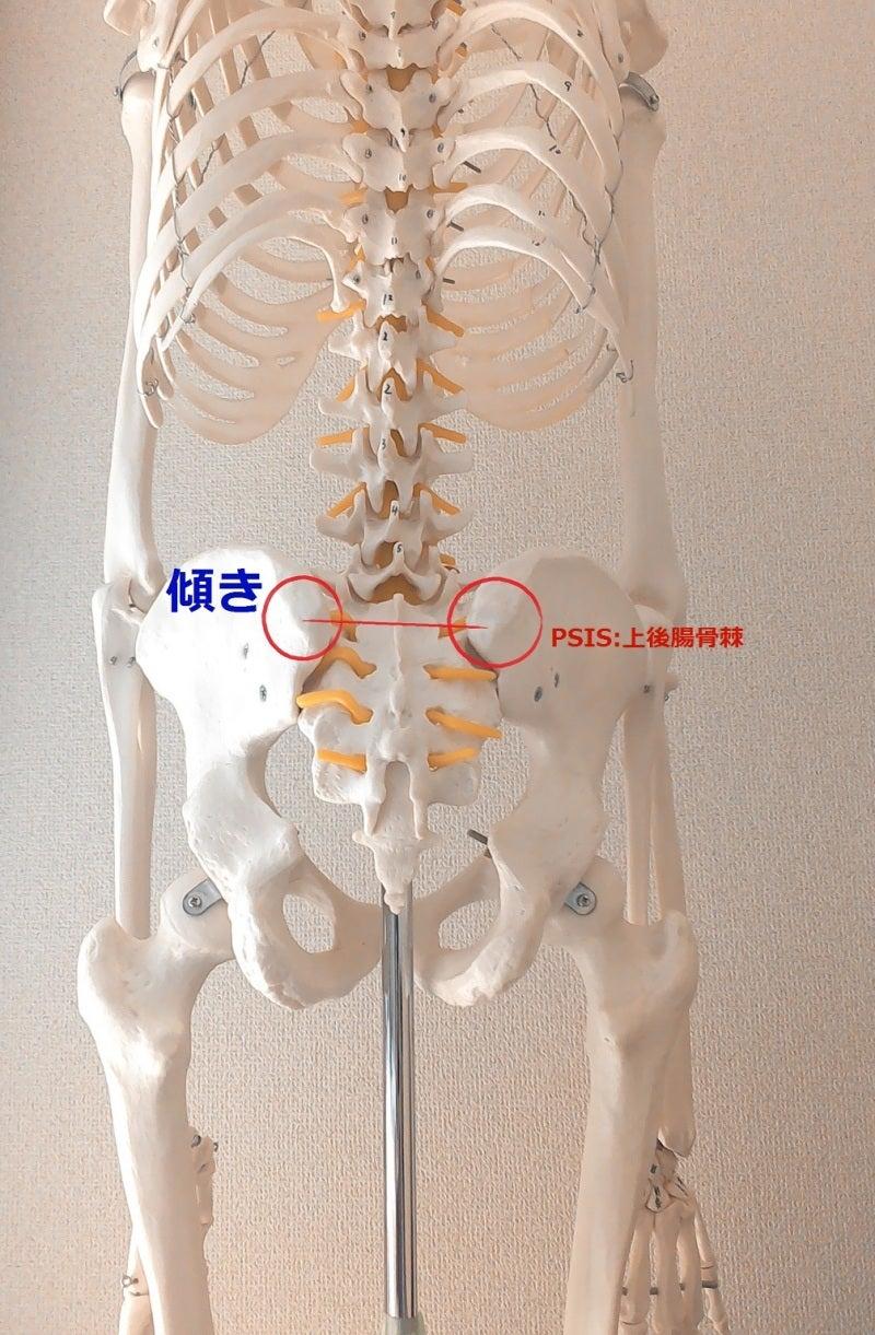 骨盤 歪み 痛み 原因 2 PSIS