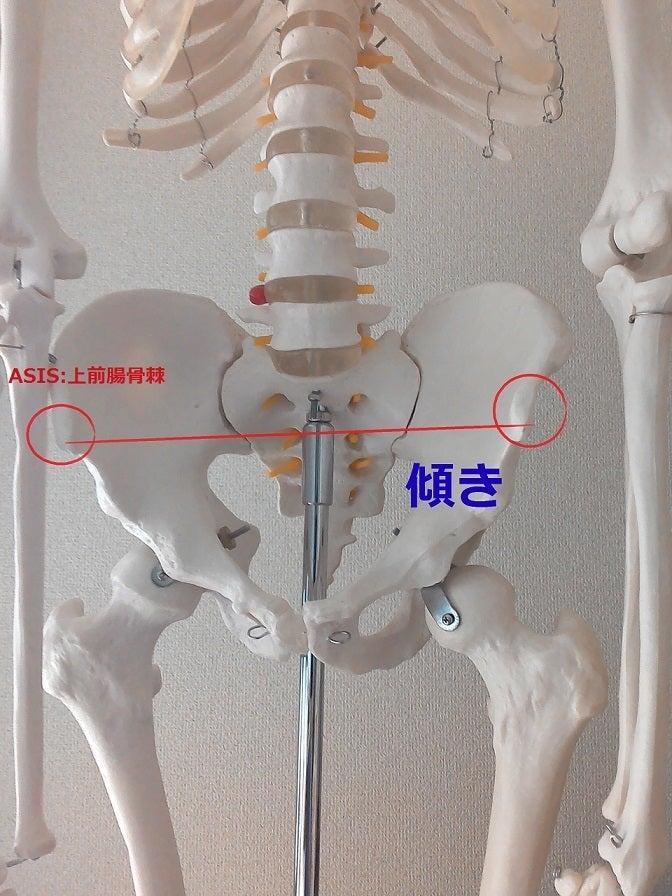 骨盤 歪み 痛み 原因 1 ASIS