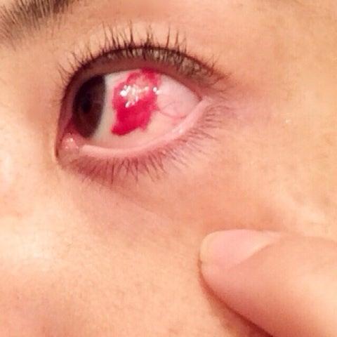 の 原因 目 充血