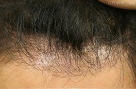 移植毛は発毛するのか