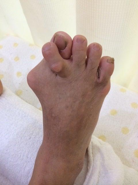 外反母趾が極端に変形する原因   ドリーム☆アゲイン 三郷市