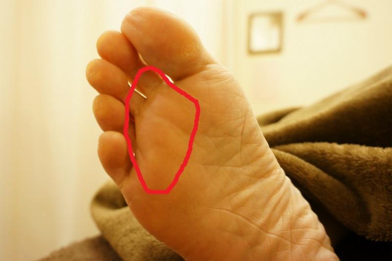 足 の 裏 硬い 痛い 足の裏が痛いときに考えられる原因と隠された病気!
