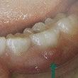 乳歯の根の治療につい…