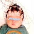 続・良性新生児睡眠時…